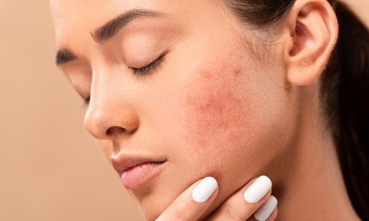 main of How Can I Keep My Acne Under Control?